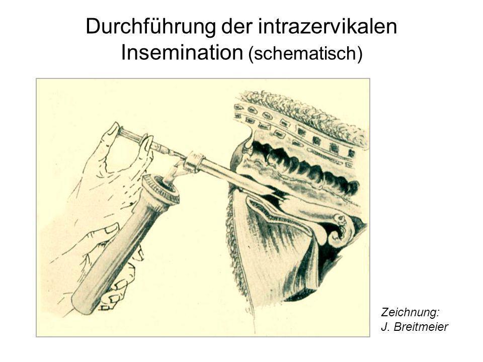 Durchführung der intrazervikalen Insemination (schematisch) Zeichnung: J. Breitmeier