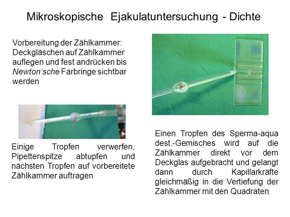 Mikroskopische Ejakulatuntersuchung - Dichte Einige Tropfen verwerfen, Pipettenspitze abtupfen und nächsten Tropfen auf vorbereitete Zählkammer auftra