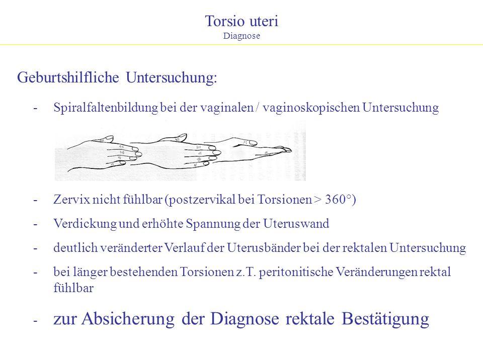 Torsio uteri Diagnose - Zervix nicht fühlbar (postzervikal bei Torsionen > 360°) - Verdickung und erhöhte Spannung der Uteruswand - deutlich verändert