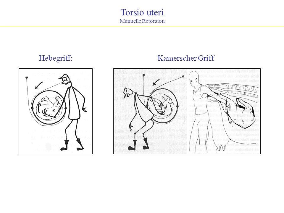 Torsio uteri Manuelle Retorsion Hebegriff:Kamerscher Griff