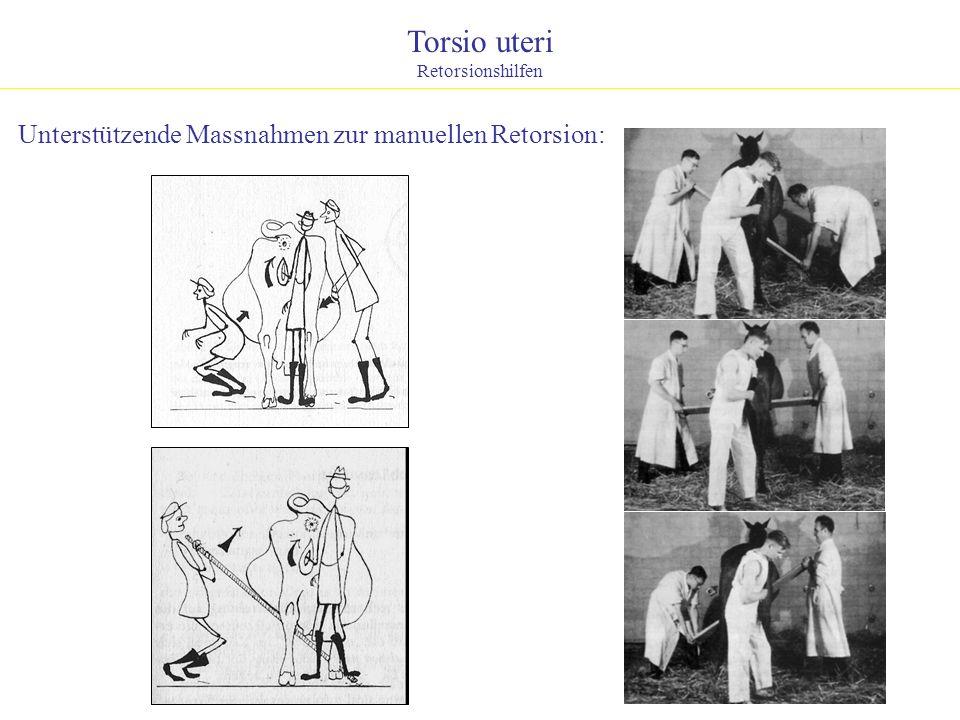 Torsio uteri Retorsionshilfen Unterstützende Massnahmen zur manuellen Retorsion: