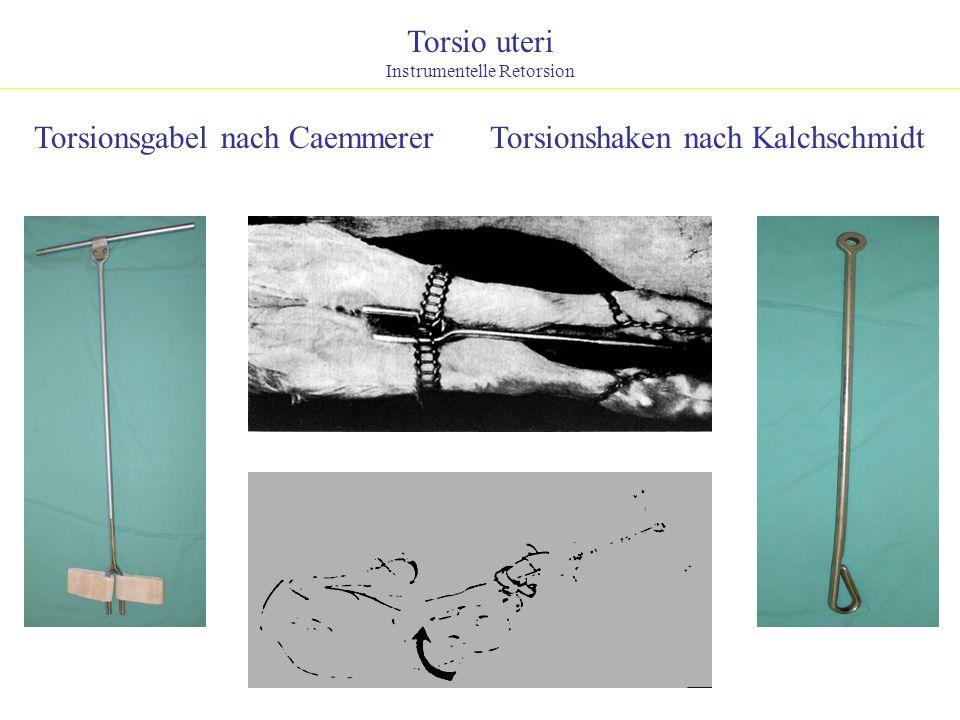 Torsio uteri Instrumentelle Retorsion Torsionsgabel nach CaemmererTorsionshaken nach Kalchschmidt