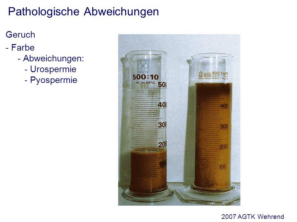 Pathologische Abweichungen Geruch - Farbe - Abweichungen: - Urospermie - Pyospermie 2007 AGTK Wehrend