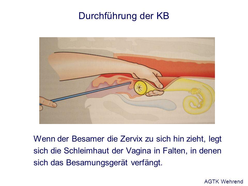 Durchführung der KB Wenn der Besamer die Zervix zu sich hin zieht, legt sich die Schleimhaut der Vagina in Falten, in denen sich das Besamungsgerät ve