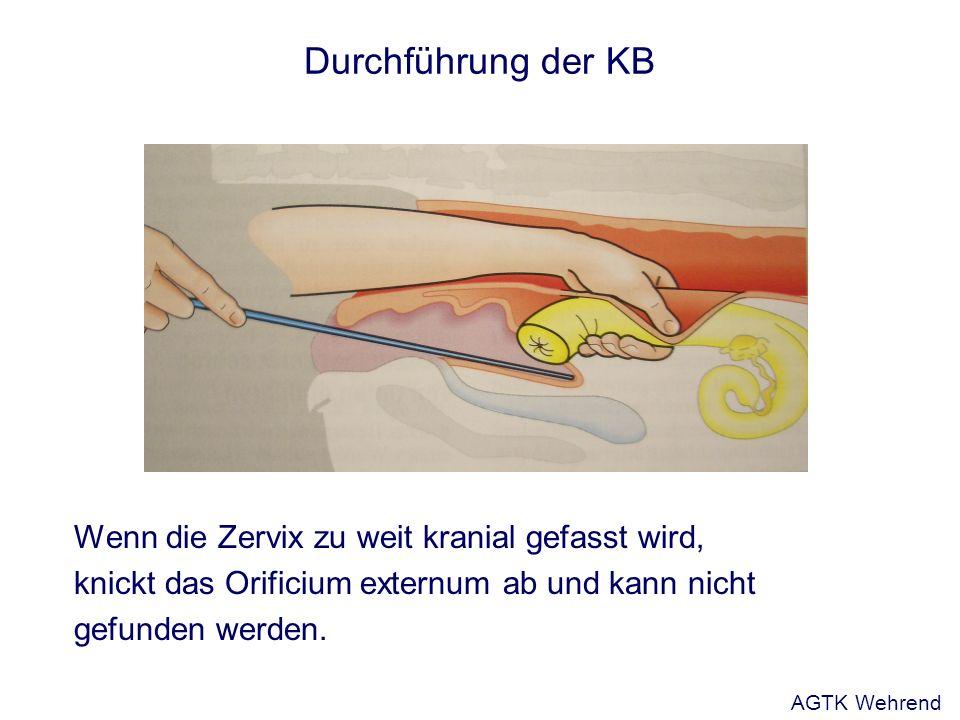 Durchführung der KB Wenn die Zervix zu weit kranial gefasst wird, knickt das Orificium externum ab und kann nicht gefunden werden. AGTK Wehrend