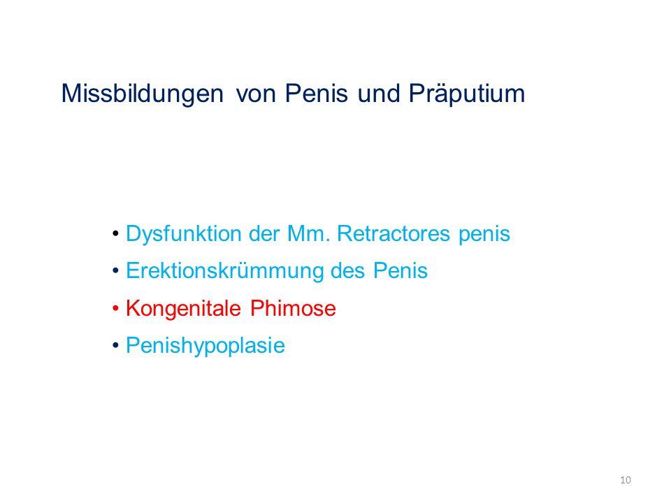 Missbildungen von Penis und Präputium Dysfunktion der Mm. Retractores penis Erektionskrümmung des Penis Kongenitale Phimose Penishypoplasie 10