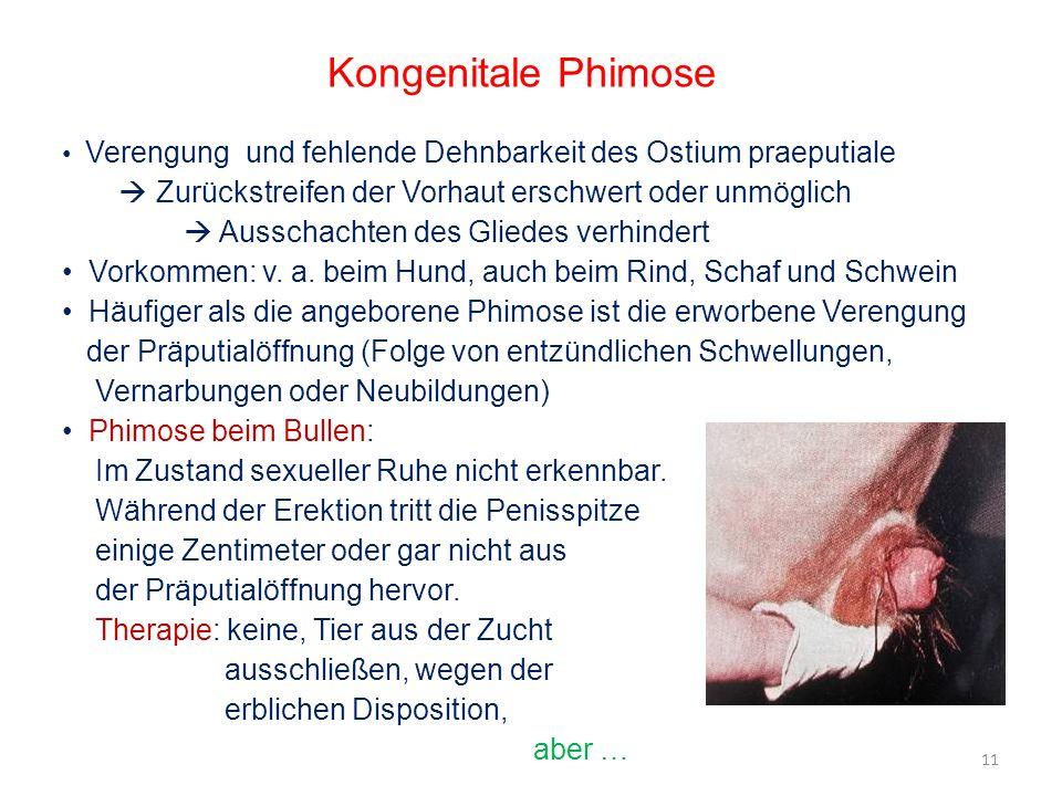 Kongenitale Phimose Verengung und fehlende Dehnbarkeit des Ostium praeputiale Zurückstreifen der Vorhaut erschwert oder unmöglich Ausschachten des Gli