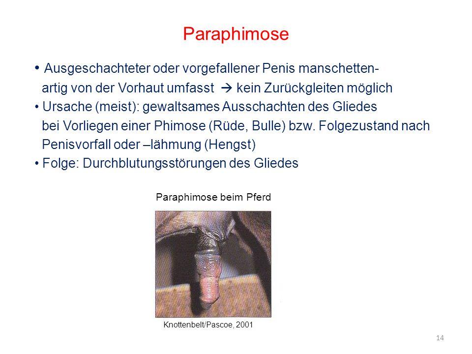 Paraphimose Ausgeschachteter oder vorgefallener Penis manschetten- artig von der Vorhaut umfasst kein Zurückgleiten möglich Ursache (meist): gewaltsam