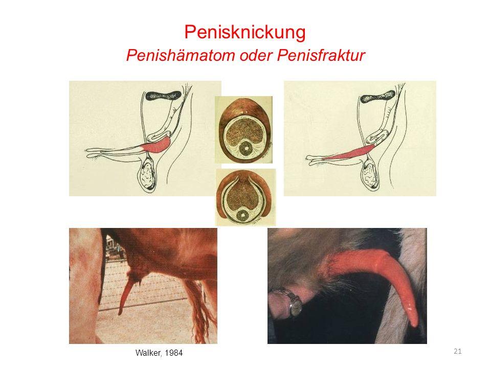 Penisknickung Penishämatom oder Penisfraktur Walker, 1984 21