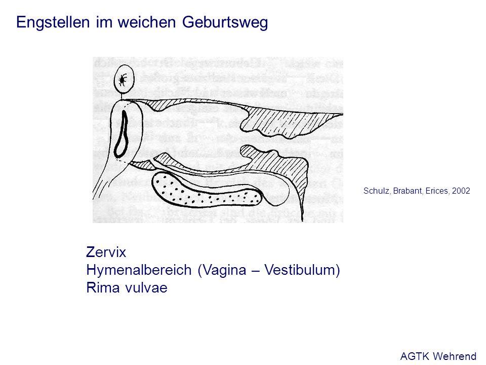 Engstellen im weichen Geburtsweg Schulz, Brabant, Erices, 2002 Zervix Hymenalbereich (Vagina – Vestibulum) Rima vulvae AGTK Wehrend