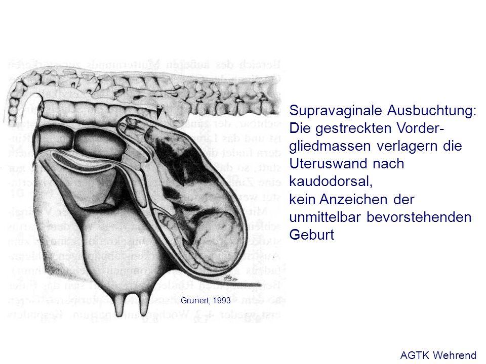 Anzeichen der bevorstehenden Geburt Pferd - Veränderungen an der Vulva - Ödematisierung - Längenveränderung - Bandapparat - Lockerung und Einfallen der Beckenbänder kann aufgrund der Kruppenmuskulatur unbemerkt bleiben - Einfallen der Flanken (Durchhängen des Bauches) - Veränderungen an der Milchdrüse - Anbildung des Euters - Harztropfen - Veränderung der Zusammensetzung des Präkolostrums AGTK Wehrend
