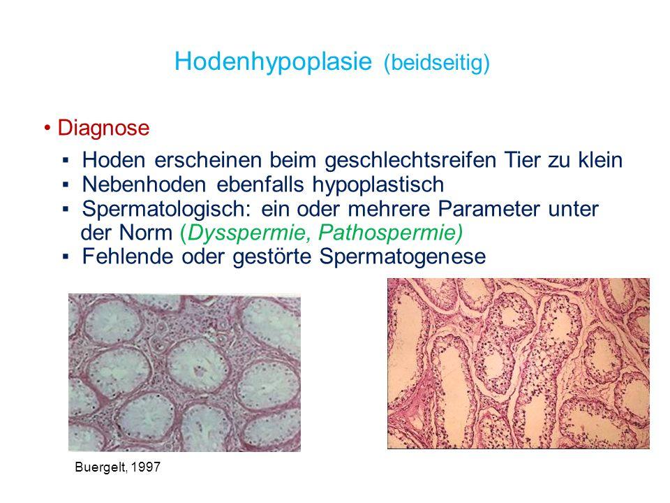 Hoden sind kleiner und härter als normal Hodenfibrose Endzustand der Hoden nach vorwiegend proliferativer Entzündung (Auftreten von Fibrozyten -> Kollagenfaser- anreicherung im Interstitium) ähnlich dem Krankheitsbild der Hodentuberkulose