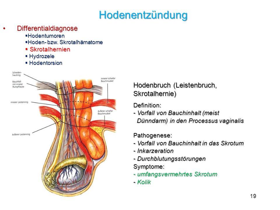 19 Hodenentzündung Hodenentzündung Differentialdiagnose Differentialdiagnose Hodentumoren Hodentumoren Hoden- bzw. Skrotalhämatome Hoden- bzw. Skrotal