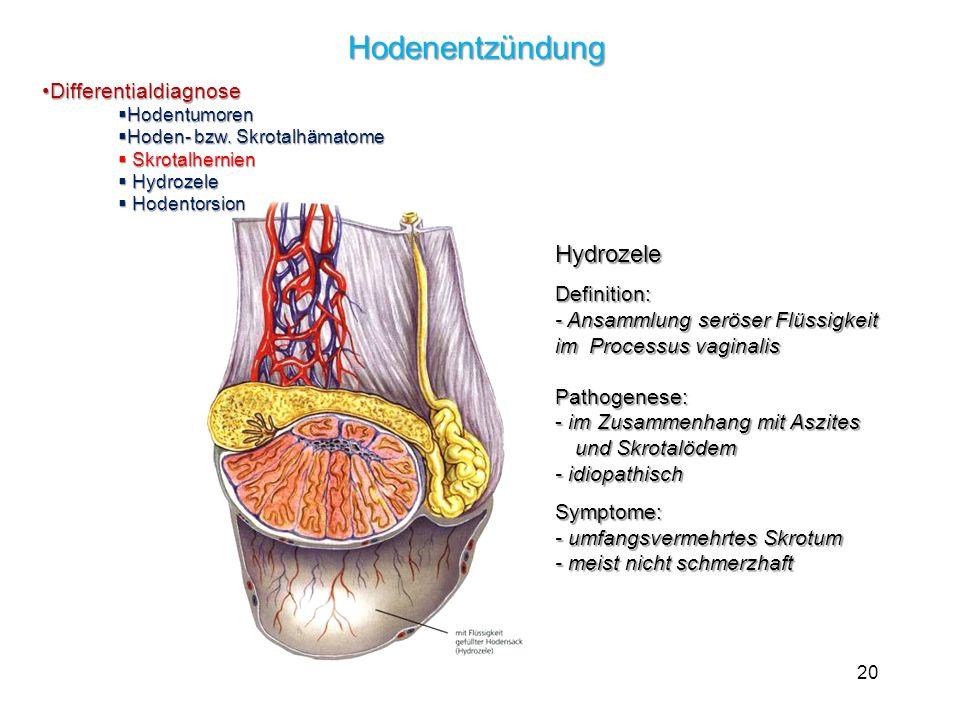 20 Hydrozele Definition: - Ansammlung seröser Flüssigkeit im Processus vaginalis Pathogenese: - im Zusammenhang mit Aszites und Skrotalödem - idiopathisch Symptome: - umfangsvermehrtes Skrotum - meist nicht schmerzhaft Hodenentzündung DifferentialdiagnoseDifferentialdiagnose Hodentumoren Hodentumoren Hoden- bzw.