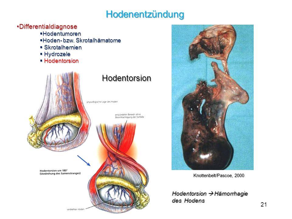 21 Hodenentzündung DifferentialdiagnoseDifferentialdiagnose Hodentumoren Hodentumoren Hoden- bzw. Skrotalhämatome Hoden- bzw. Skrotalhämatome Skrotalh