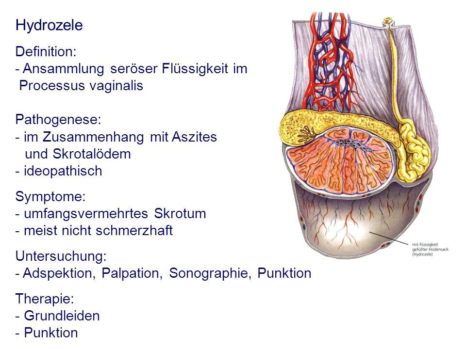 Hydrozele Definition: - Ansammlung seröser Flüssigkeit im Processus vaginalis Pathogenese: - im Zusammenhang mit Aszites und Skrotalödem - ideopathisc