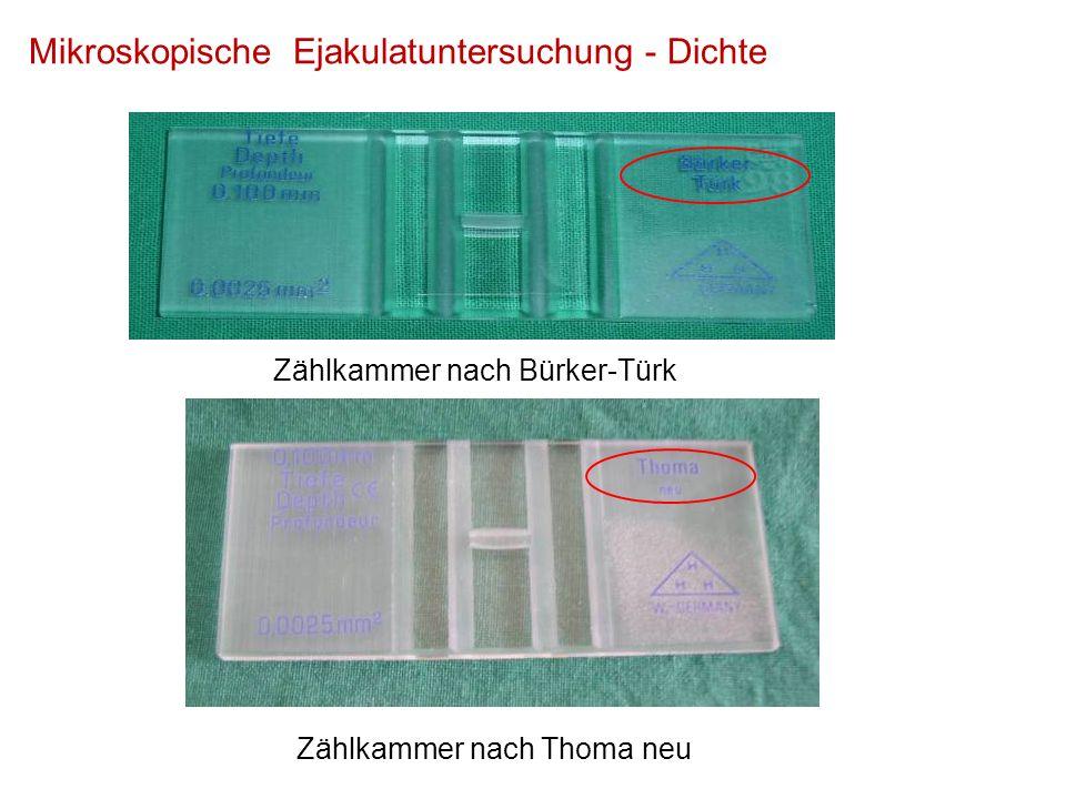 Zählkammer nach Thoma neu Zählkammer nach Bürker-Türk Mikroskopische Ejakulatuntersuchung - Dichte
