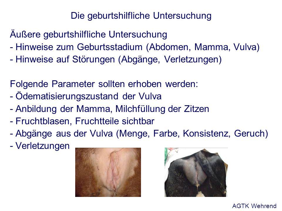 Die geburtshilfliche Untersuchung Position der Frucht im Geburtsweg - vorgetreten - eingetreten - durchgetreten dabei Bezeichnung der betreffenden Körperteile Merke: Ist der Brustkorb durchgetreten, kann die Frucht in der Regel nicht mehr zurückverlagert werden.