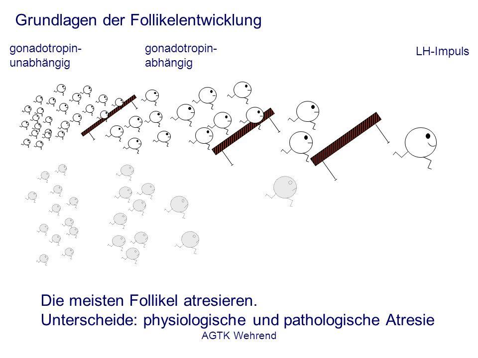 AGTK Wehrend Ovarialzysten Def.: persistierende Graafsche Follikel periovulatorisches Wachstum aber keine Ovulation Einteilung: - einseitig, beidseitig, solitär, multipel - endokrinologisch aktiv oder inaktiv - nach Art des Hormones : FOLLIKEL-THEKA-ZYSTEN FOLLIKEL-LUTEIN-ZYSTEN großzystische Degeneration: eigentliche Ovarialzysten kleinzystische Degeneration: viele arretierte kleine Tertiärfollikel Luteinisierung