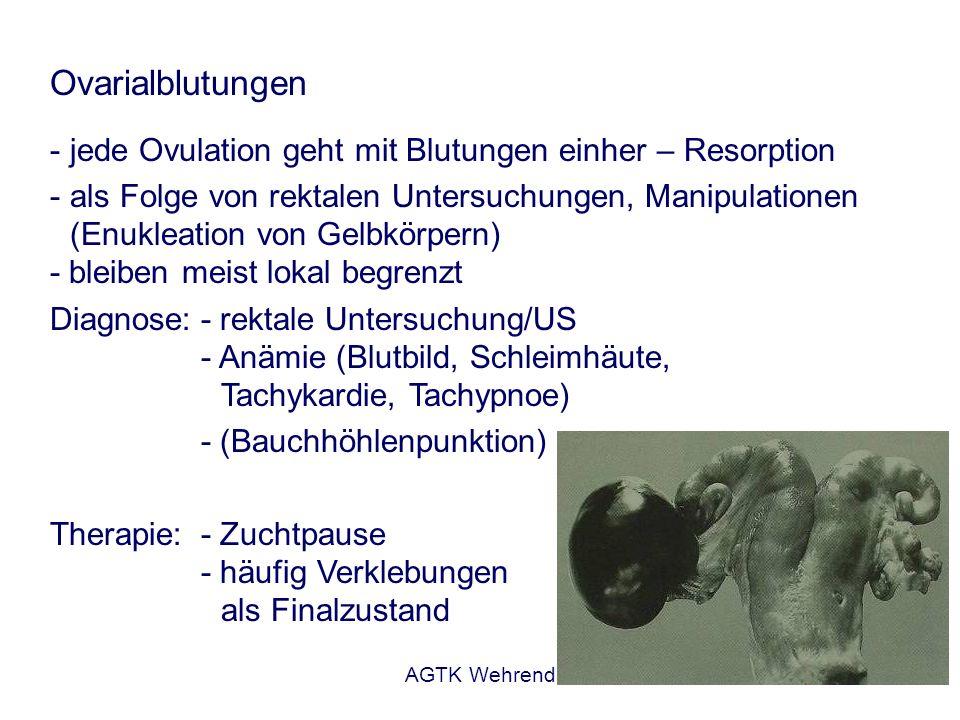AGTK Wehrend Paraovarialzysten - flüssigkeitsgefüllte Hohlräume in der Nähe der Ovars (Mesosalpinx, Mesovar) - Reste von Wolfschen Gängen Differentialdiagnostische Bedeutung: Verwechslung mit Ovarialzysten - keine Beeinflussung der Fertilität