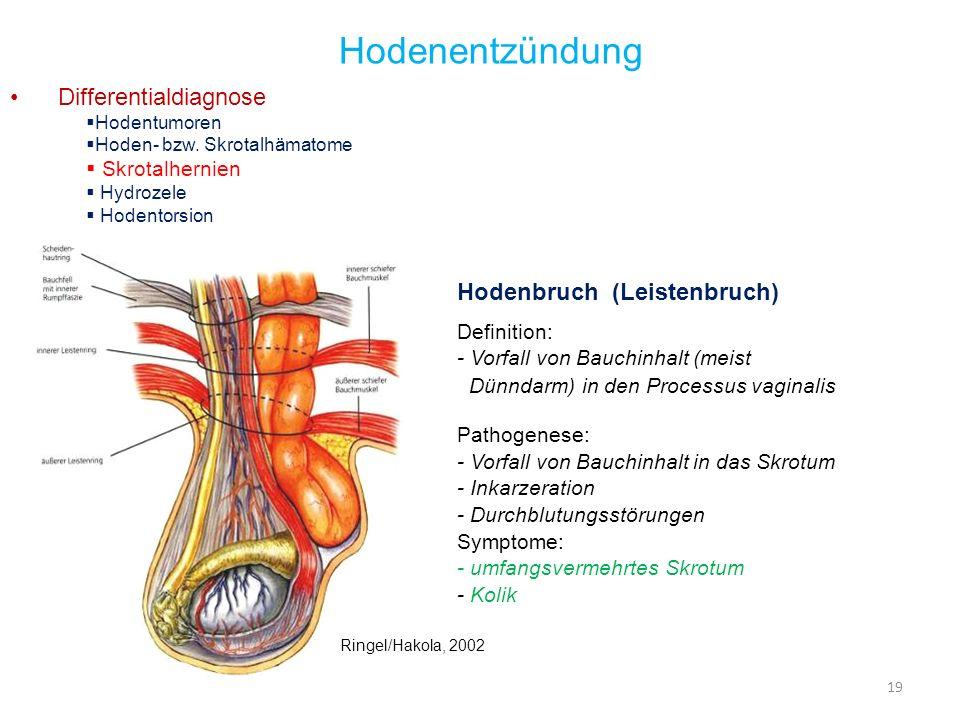 19 Hodenentzündung Differentialdiagnose Hodentumoren Hoden- bzw. Skrotalhämatome Skrotalhernien Hydrozele Hodentorsion Hodenbruch (Leistenbruch) Defin