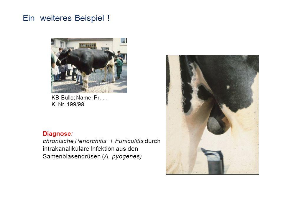 KB-Bulle; Name: Pr…, Kl.Nr. 199/98 Diagnose: chronische Periorchitis + Funiculitis durch intrakanalikuläre Infektion aus den Samenblasendrüsen (A. pyo