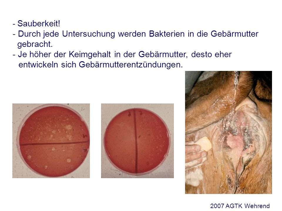 Die geburtshilfliche Untersuchung Rektale Untersuchung notwendig bei - Verdacht auf Torsio uteri - Verdacht auf perforierende Verletzungen im dorsalen Bereich der Zervix und des Uterus - Verdacht auf Blutungen in die breiten Mutterbänder 2007 AGTK Wehrend