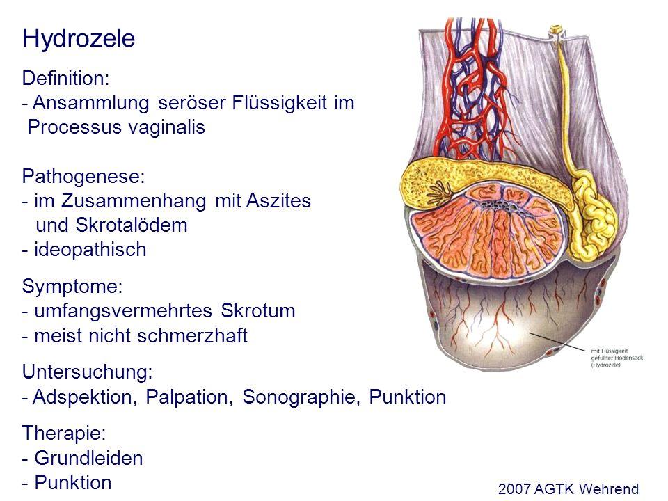 Hydrozele Definition: - Ansammlung seröser Flüssigkeit im Processus vaginalis Pathogenese: - im Zusammenhang mit Aszites und Skrotalödem - ideopathisch Symptome: - umfangsvermehrtes Skrotum - meist nicht schmerzhaft Untersuchung: - Adspektion, Palpation, Sonographie, Punktion Therapie: - Grundleiden - Punktion 2007 AGTK Wehrend