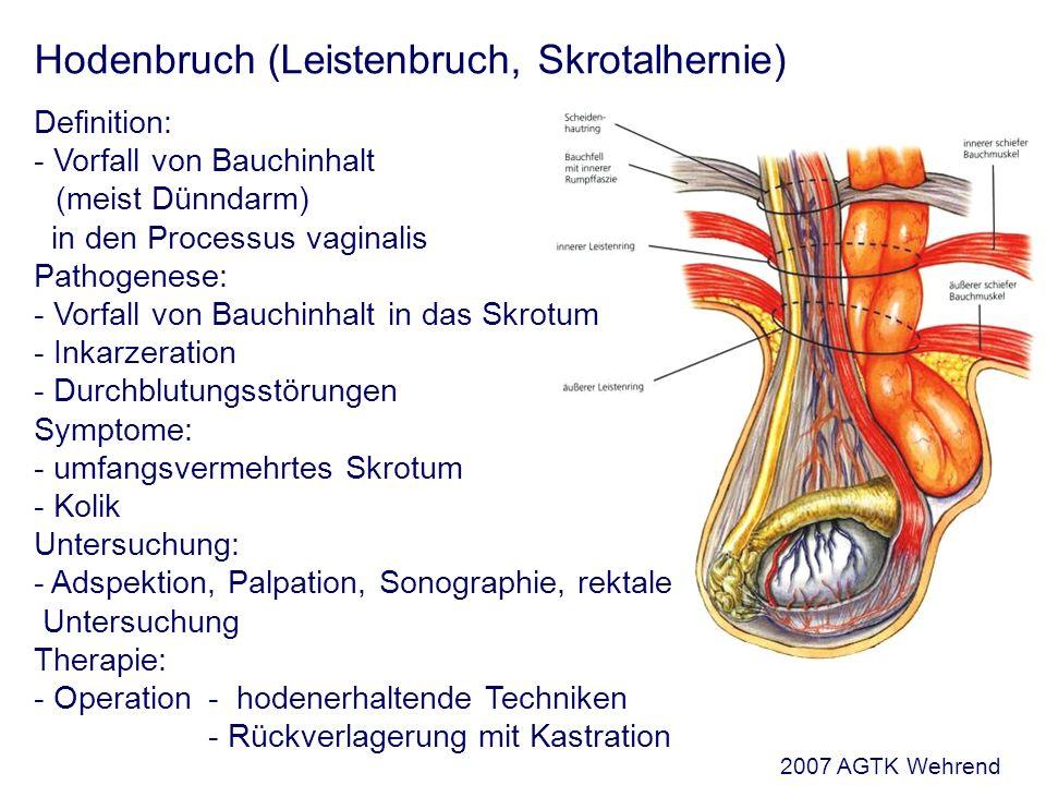 Hodenbruch (Leistenbruch, Skrotalhernie) Definition: - Vorfall von Bauchinhalt (meist Dünndarm) in den Processus vaginalis Pathogenese: - Vorfall von Bauchinhalt in das Skrotum - Inkarzeration - Durchblutungsstörungen Symptome: - umfangsvermehrtes Skrotum - Kolik Untersuchung: - Adspektion, Palpation, Sonographie, rektale Untersuchung Therapie: - Operation - hodenerhaltende Techniken - Rückverlagerung mit Kastration 2007 AGTK Wehrend