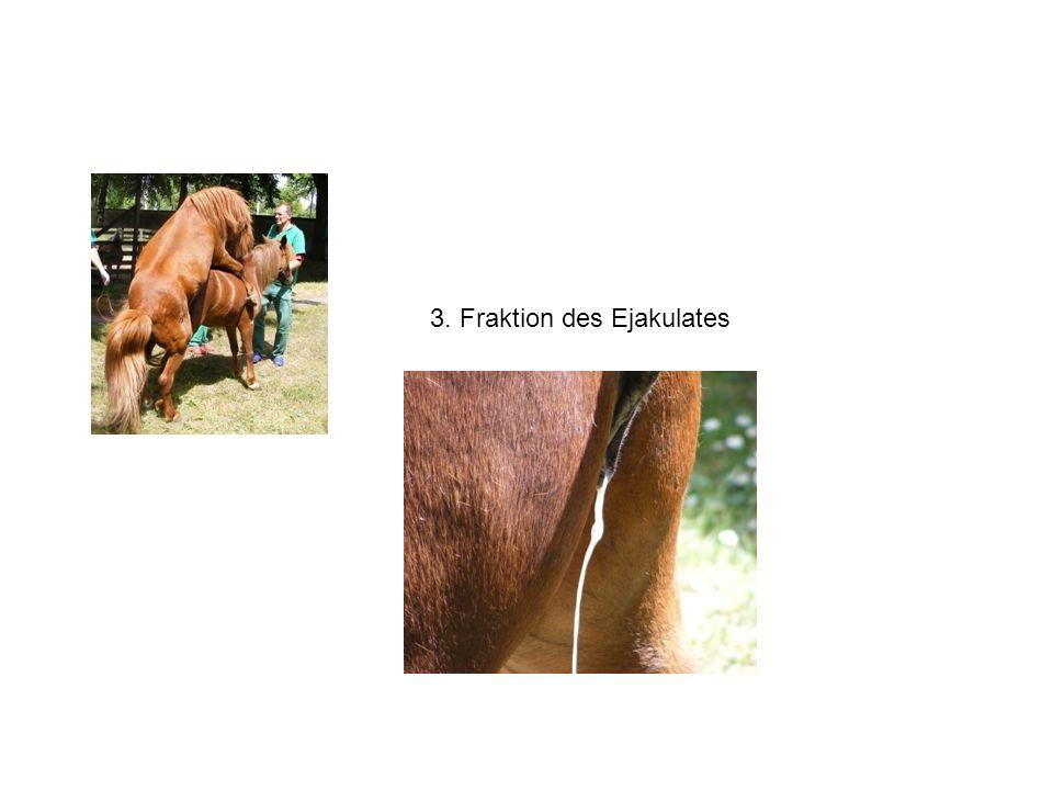 3. Fraktion des Ejakulates