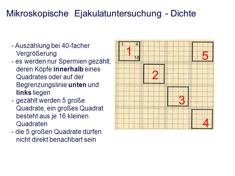 Mikroskopische Ejakulatuntersuchung - Dichte - Auszählung bei 40-facher Vergrößerung - es werden nur Spermien gezählt, deren Köpfe innerhalb eines Quadrates oder auf der Begrenzungslinie unten und links liegen -gezählt werden 5 große Quadrate, ein großes Quadrat besteht aus je 16 kleinen Quadraten - die 5 großen Quadrate dürfen nicht direkt benachbart sein 1 2 3 4 5 4 16 1