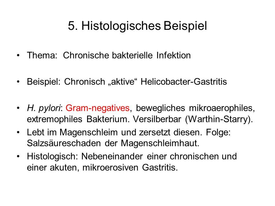 5. Histologisches Beispiel Thema: Chronische bakterielle Infektion Beispiel: Chronisch aktive Helicobacter-Gastritis H. pylori: Gram-negatives, bewegl