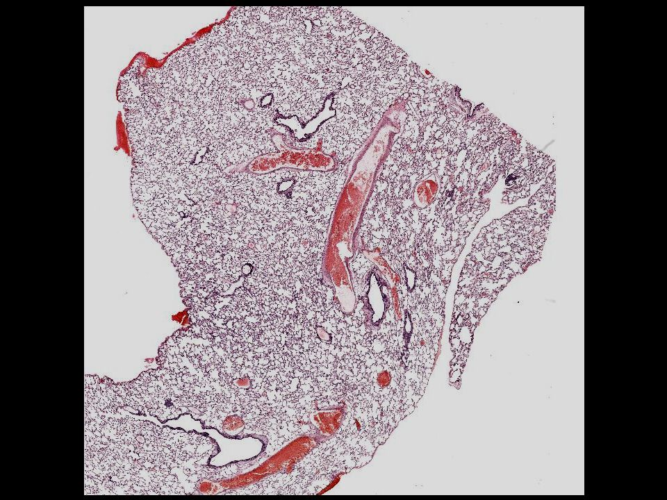 Epidemiologie: häufigstes bronchopulmonales CA häufigster Typ bei Frauen und Nichtrauchern Ursprungszelle: Bronchialepithel Alveolarepithel Biologisches Verhalten: atypische adenomatöse Hyperplasie bronchiolo-alveoläres CA Adeno-CA langsames Wachstum frühe Metastasierung Histologie: glandulär, papillär, azinär, solide muzinös / nicht muzinös Bronchopulmonales Adenokarzinom