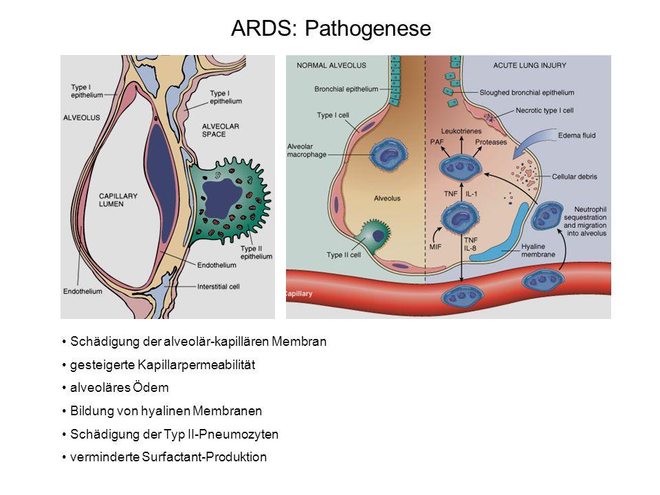 Schädigung der alveolär-kapillären Membran gesteigerte Kapillarpermeabilität alveoläres Ödem Bildung von hyalinen Membranen Schädigung der Typ II-Pneu
