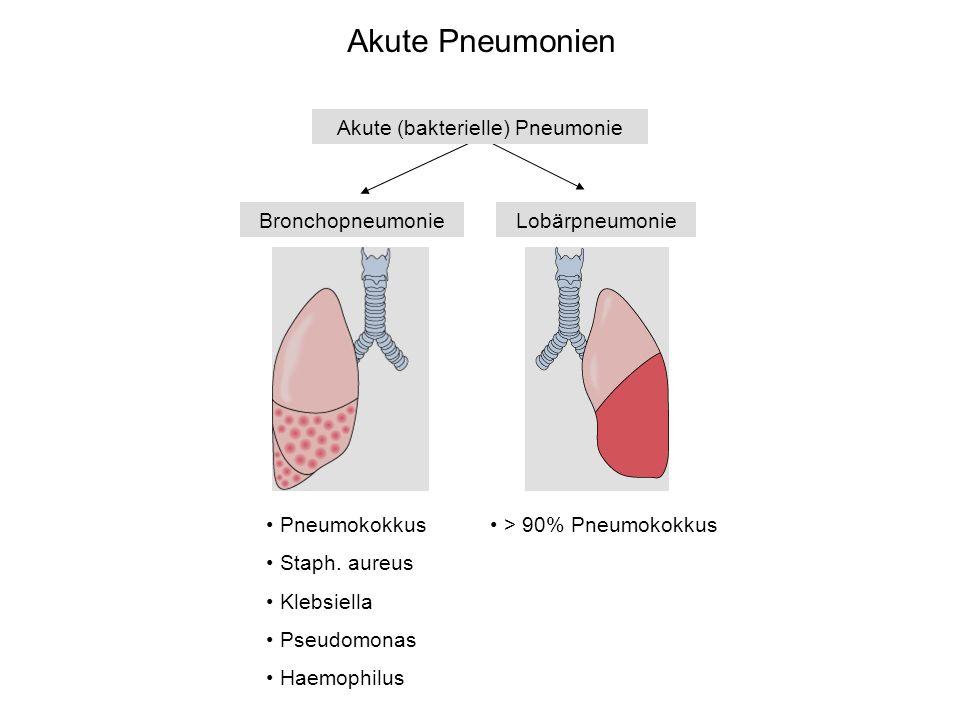 Akute Pneumonien Akute (bakterielle) Pneumonie BronchopneumonieLobärpneumonie Pneumokokkus Staph. aureus Klebsiella Pseudomonas Haemophilus > 90% Pneu