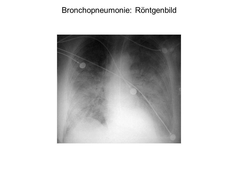 Bronchopneumonie: Röntgenbild