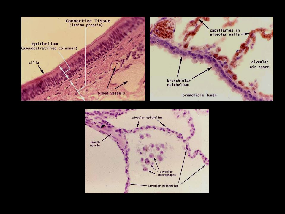 COPD (chronic obstructive pulmonary disease) chronische BronchitisLungenemphysem chronische Bronchitis + Lungenemphysem = COPD