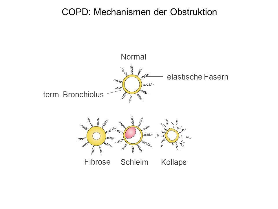 Lungenemphysem Definition (morphologisch): Irreversible Vermehrung des Luftgehalts der Lunge mit Parenchymzerstörung Pathogenese: Tabakrauch Tabakrauch enthält reaktive Sauerstoffspezies Produktion von TNF und IL-8 Rekrutierung von neutrophilen Granulozyten und Makrophagen Produktion von Proteasen Gewebeschädigung 1-Antitrypsin-Mangel (1 pro 10 000) Neutrophile Granulozyten gelangen in das Interstitium Produktion von Proteasen, u.a.