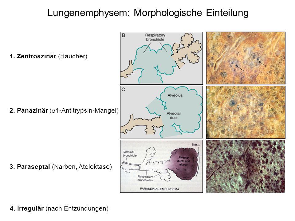 Lungenemphysem: Morphologische Einteilung 1. Zentroazinär (Raucher) 2. Panazinär ( 1-Antitrypsin-Mangel) 3. Paraseptal (Narben, Atelektase) 4. Irregul