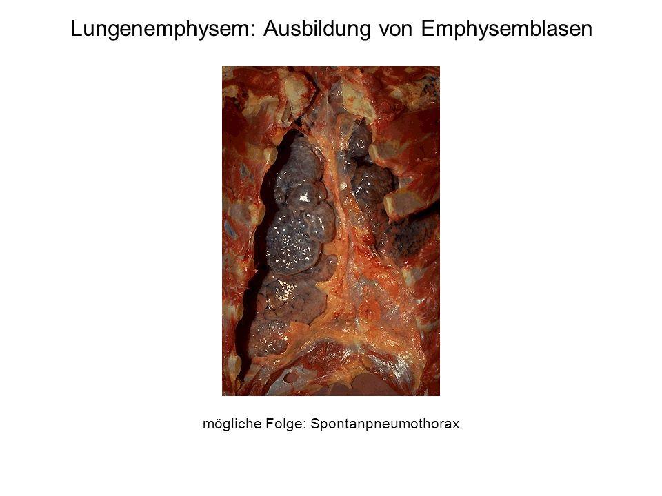 Chronische Bronchitis Definition (klinisch): Husten + Auswurf in mindestens 3 aufeinanderfolgenden Monaten in mindestens 2 aufeinanderfolgenden Jahren Ursachen: Rauchen (5-15% entwickeln eine chronische Bronchitis) Smog