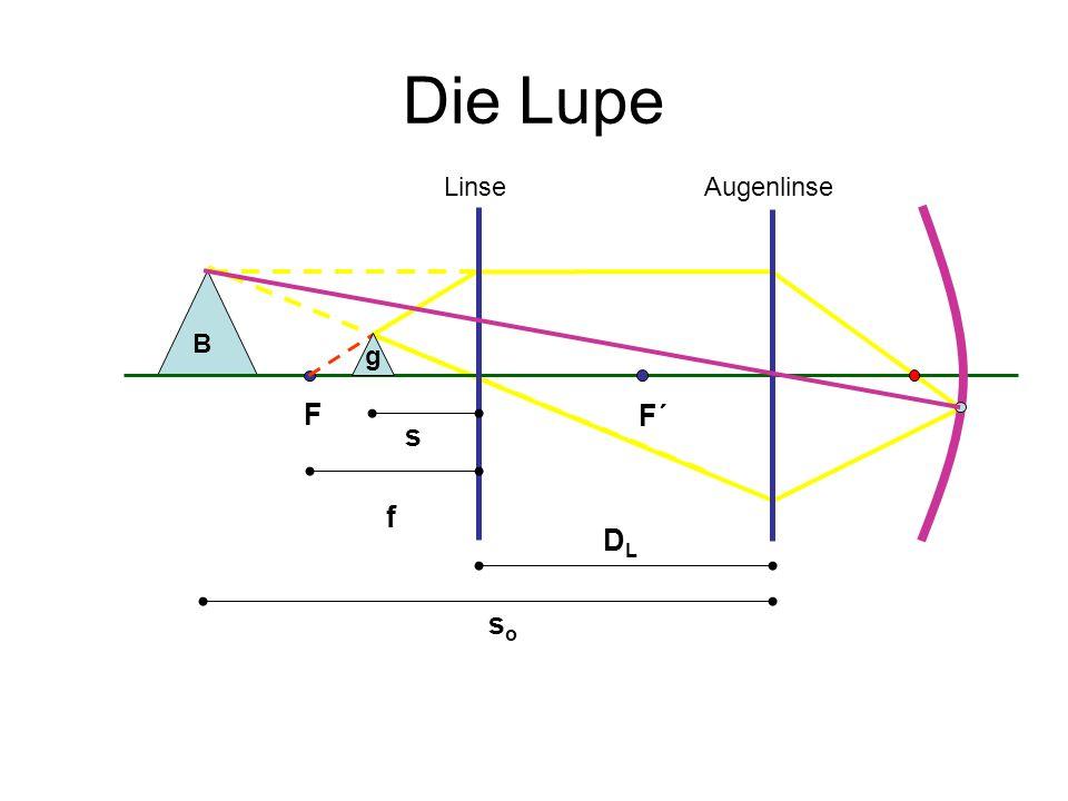 Die Lupe – Vergrößerung des Sehwinkels s soso DLDL f B AugenlinseLinse F F´ g Es wird in beiden Fällen auf die deutliche Sehweite fokussiert und der Sehwinkel verglichen