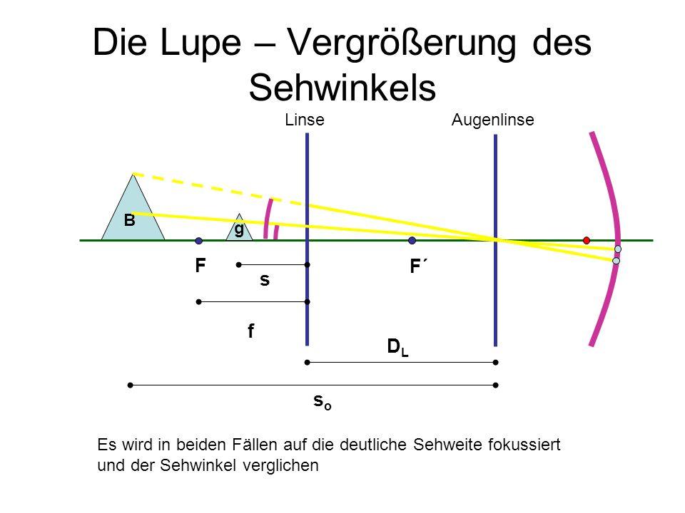 Die Lupe – Vergrößerung des Sehwinkels s soso DLDL f B AugenlinseLinse F F´ g Es wird in beiden Fällen auf die deutliche Sehweite fokussiert und der S