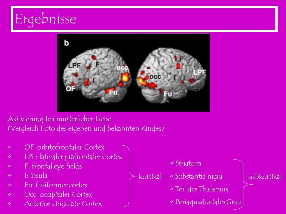 Ergebnisse Aktivierung bei mütterlicher Liebe (Vergleich Foto des eigenen und bekannten Kindes) OF: orbitofrontaler Cortex LPF: lateraler präfrontaler