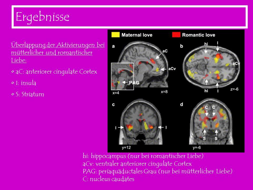 Ergebnisse Überlappung der Aktivierungen bei mütterlicher und romantischer Liebe: aC: anteriorer cingulate Cortex I: insula S: Striatum hi: hippocampu