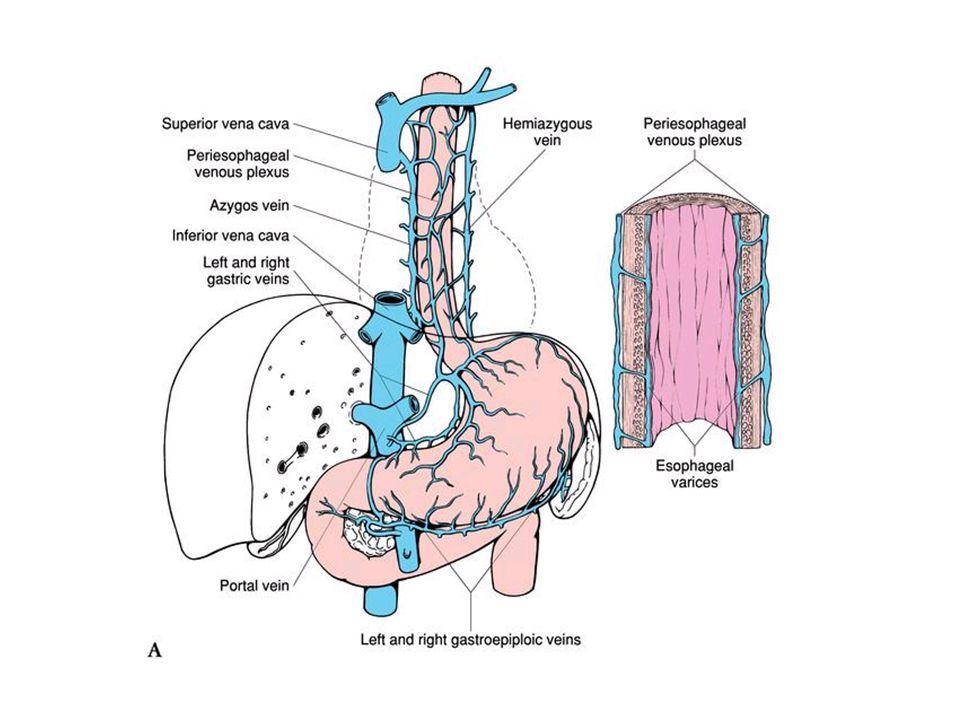 Tolle Anatomie Der Pfortader Zeitgenössisch - Anatomie Ideen ...