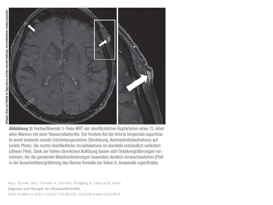Ness, Thomas; Bley, Thorsten A.; Schmidt, Wolfgang A.; Lamprecht, Peter Diagnose und Therapie der Riesenzellarteriitis Dtsch Arztebl Int 2013; 110(21): 376-86; DOI: 10.3238/arztebl.2013.0376