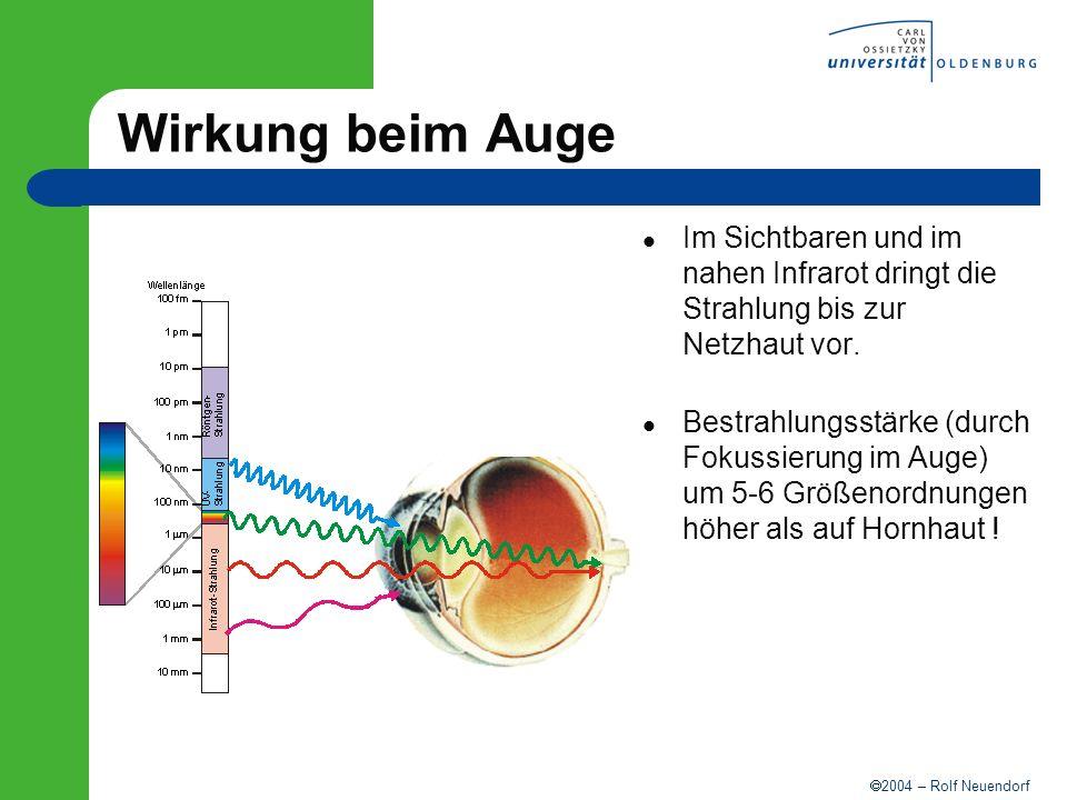 2004 – Rolf Neuendorf Wirkung beim Auge Im Sichtbaren und im nahen Infrarot dringt die Strahlung bis zur Netzhaut vor. Bestrahlungsstärke (durch Fokus