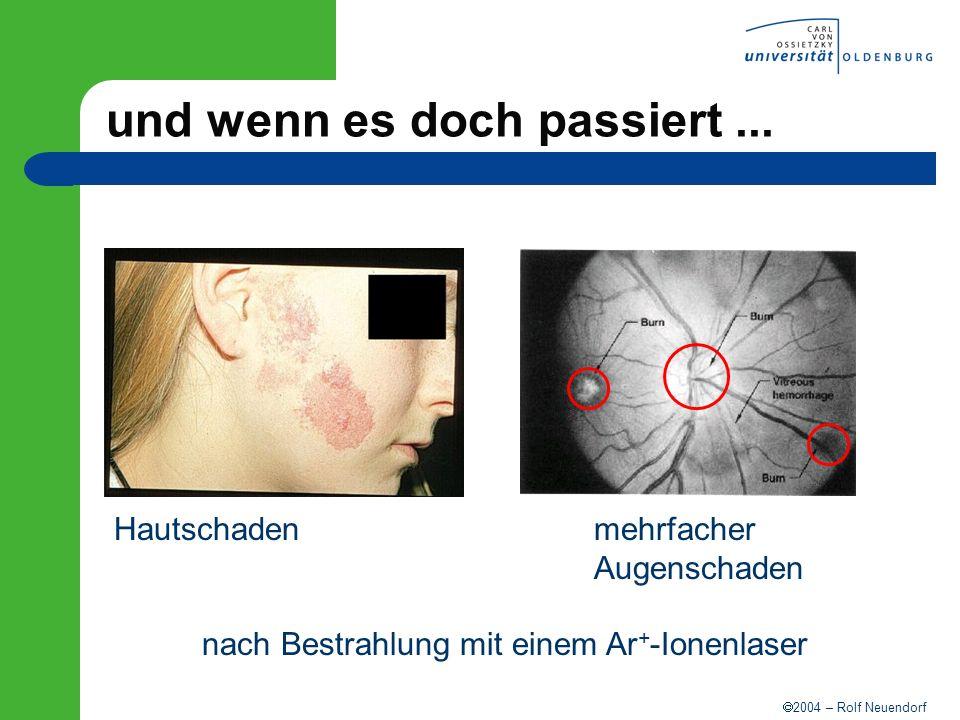 2004 – Rolf Neuendorf und wenn es doch passiert... Hautschaden mehrfacher Augenschaden nach Bestrahlung mit einem Ar + -Ionenlaser