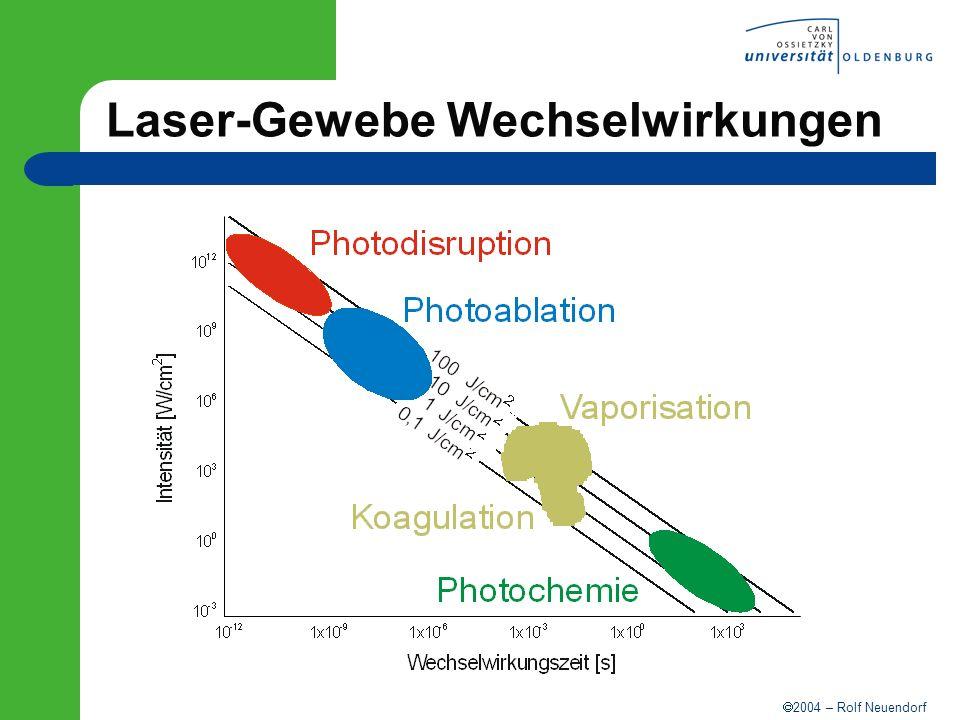 2004 – Rolf Neuendorf Laser-Gewebe Wechselwirkungen