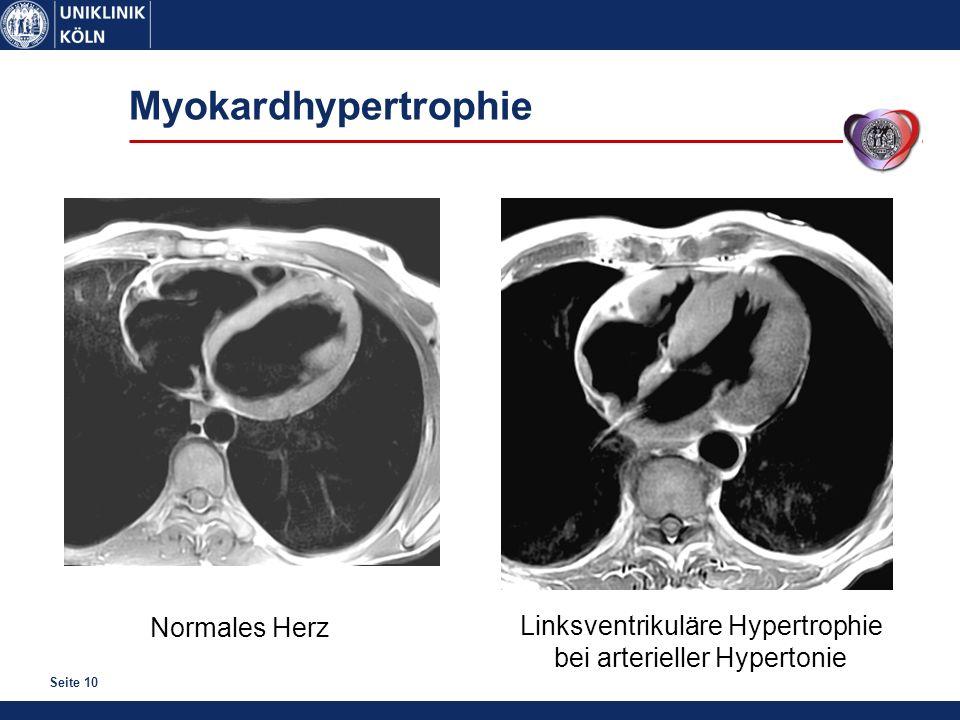 Seite 10 Myokardhypertrophie Normales Herz Linksventrikuläre Hypertrophie bei arterieller Hypertonie